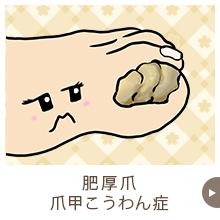爪甲こうわん症・肥厚爪